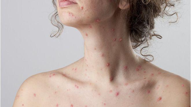 Surto de sarampo nos EUA já ultrapassa anos anteriores